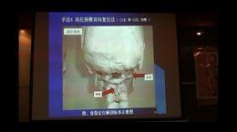 10中医颈椎复位治疗法