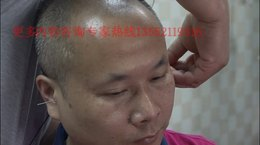 中医耳鸣治疗法