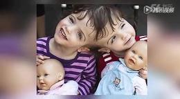 7岁连体婴姐妹共用一个大脑 通过对方眼看世界