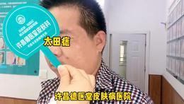 激光祛除面部太田痣(许昌德医堂)包干治、治好为止。郑州皮肤