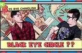 """粤语中的""""黑眼圈""""用英语怎么说"""