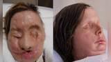 女子收养黑猩猩,它却残忍啃掉朋友脸皮,面目全非看不清五官